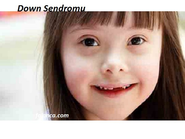 Down Sendromu