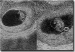 6 Gebelik Haftasi Anne Karninda Bebek Resimleri 2