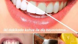 İki dakikada diş beyazlatma yöntemleri