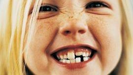 Çocukların Dişlerini Koruma Yöntemi