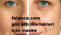 Göz Altı Morlukları İçin Maskeler