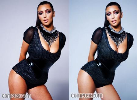 Kim Kardashian Selulit Yagi